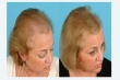 Get the best Microneedling for Alopecia Treatment